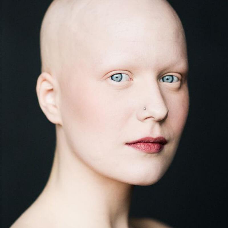 بره موم و درمان سرطان
